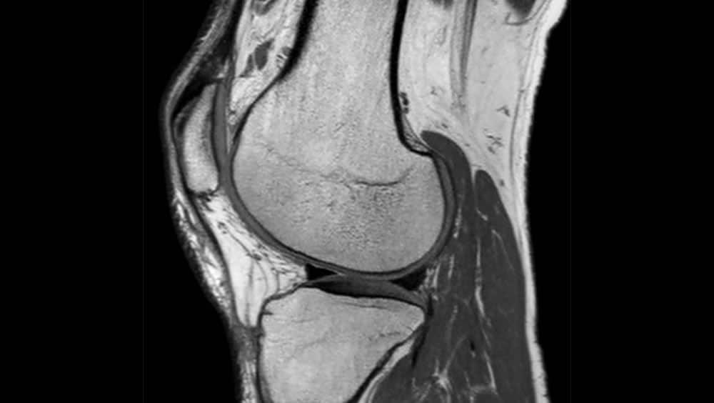 Imagen de resonancia magnética multiparamétrica de próstata en Palermo y provincia de La